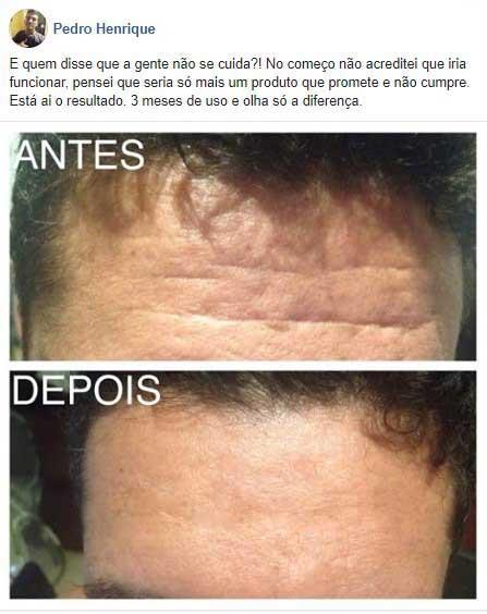 depoimentos dermacaps colageno